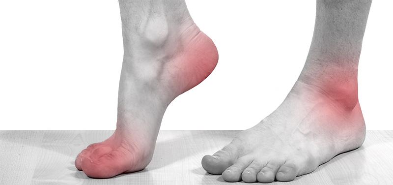 Лечение подагры и подагрического артрита — признаки, симптомы ...